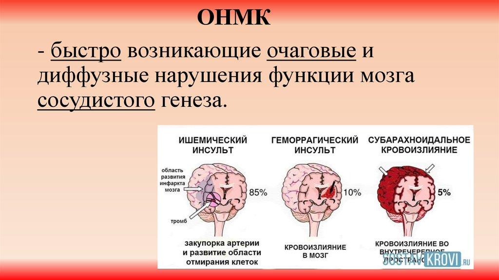 Онмк: что это такое по ишемическому типу?