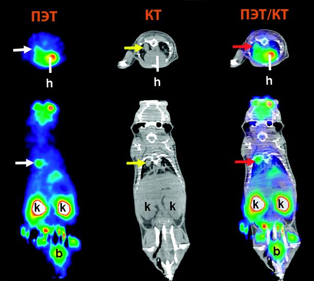 Однофотонная эмиссионная компьютерная томография что это: головного мозга
