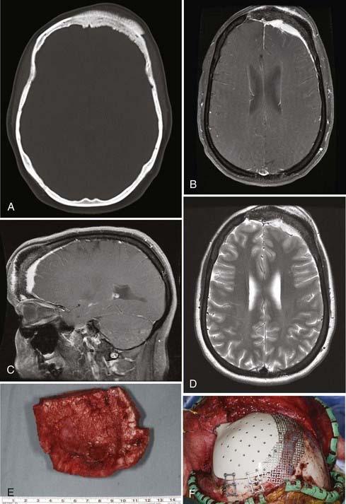 Лобная менингиома головного мозга: удаление и прогноз