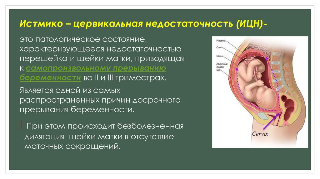 Ицн при беременности - истмико-цервикальная недостаточность: что это такое, симптомы, признаки и причины, лечение и отзывы