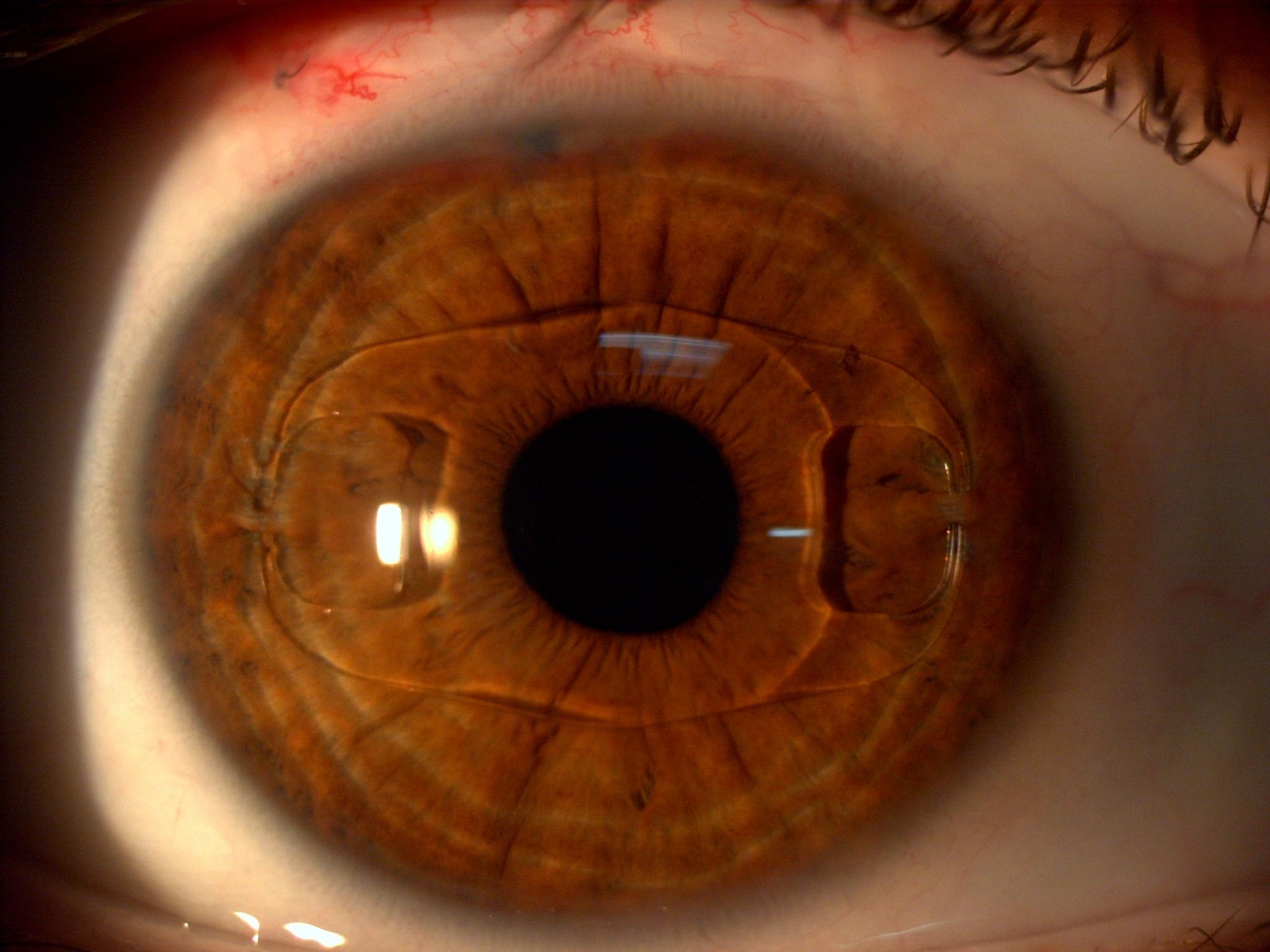 Что такое артифакия глаза, когда применяется oculistic.ru что такое артифакия глаза, когда применяется