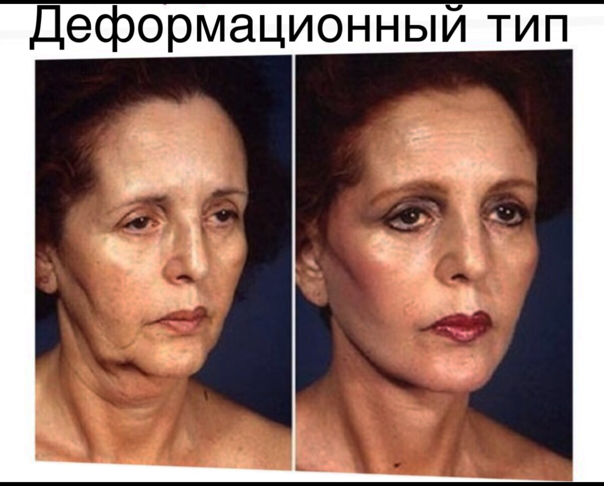 Почему происходит обвисание мягких тканей лица, что такое гравитационный птоз и как с ним бороться без операций и инъекций