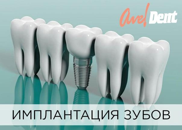 Что такое зубной имплант (имплантант, имплантат): виды и установка