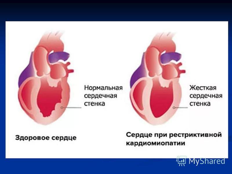 Что такое дилатационная кардиомиопатия: причины и симптомы, лечение и прогноз жизни