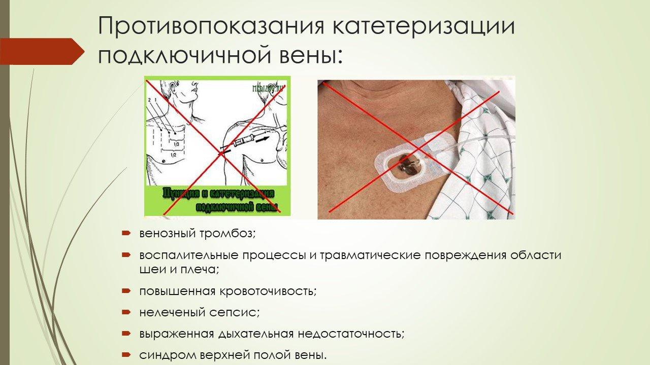 Особенности использования мочеточниковых катетеров