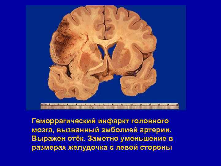 Инфаркт мозга: что это такое, чем отличается от инсульта, симптомы и лечение