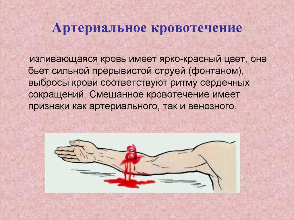 Кровотечение — википедия с видео // wiki 2