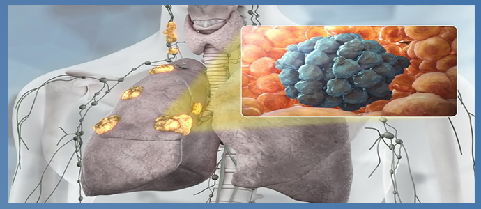 Метастазы - что это и как выглядят, медикаментозная и оперативная терапия