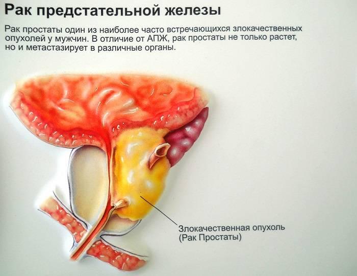 Аденома простаты у мужчин: что это такое, симптомы и методы лечения