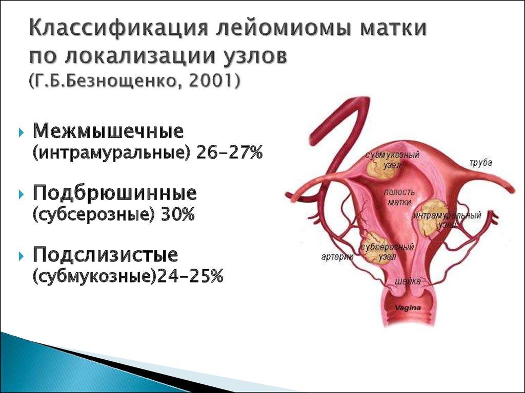 Миома тела матки – что это значит для женского здоровья, влияние на вес и давление, основные осложнения миомы у женщин после 45 и 50 лет, лечение в москве