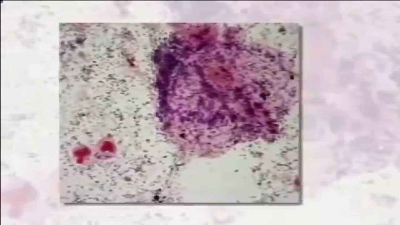 Общий мазок: какие инфекции и показатели включает, как берут, подготовка.