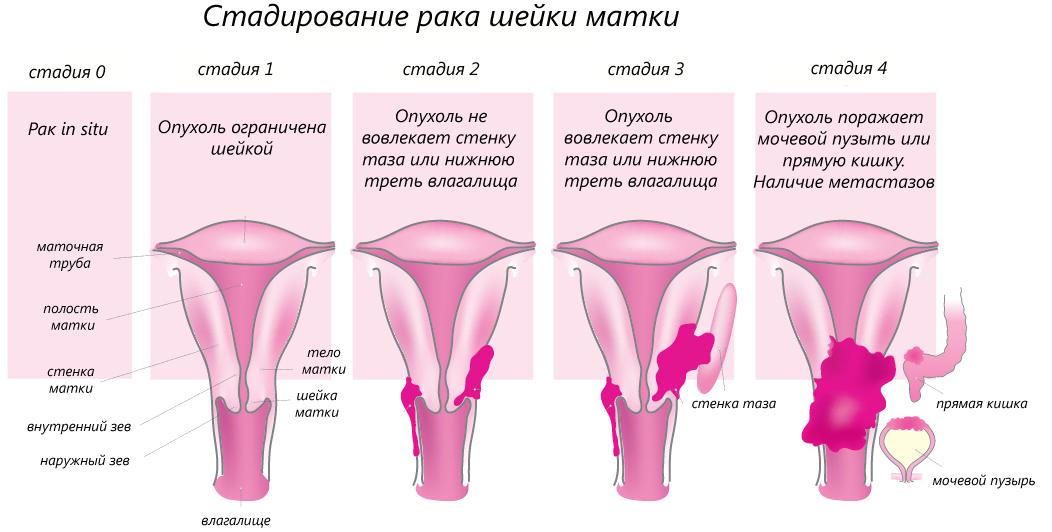 Дисплазия шейки матки 2 3 степени, ответы врачей, консультация