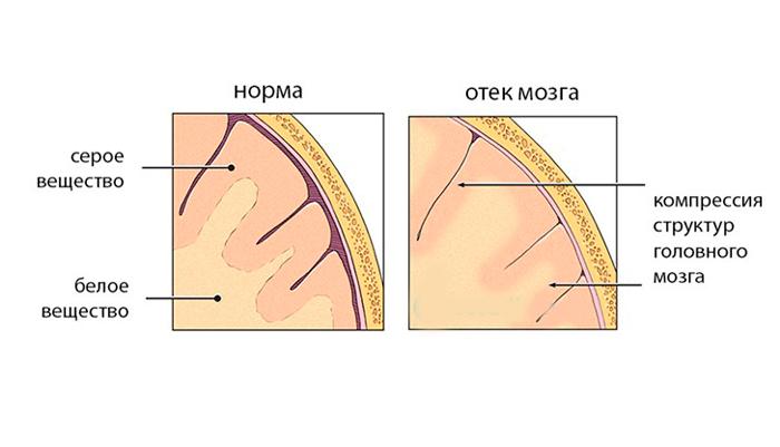 Отек головного мозга - симптомы, причины, лечение