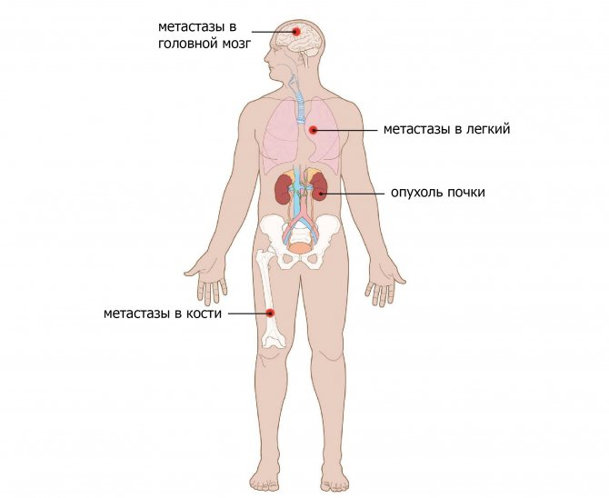 Какие ощущения при метастазах. метастазы: симптомы и диагностирование.