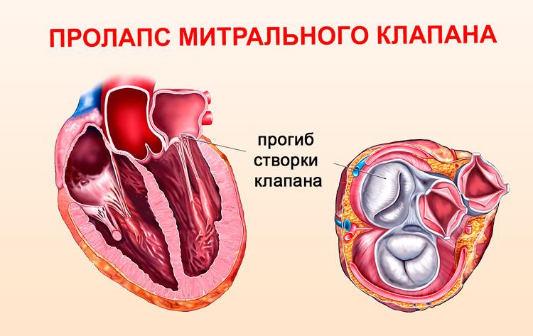 Чем опасен пролапс митрального клапана сердца