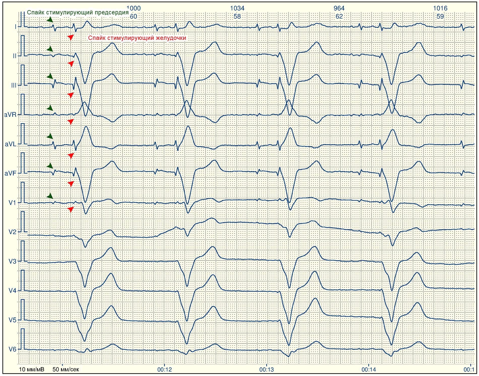 Нестабильный синусовый ритм — сердце