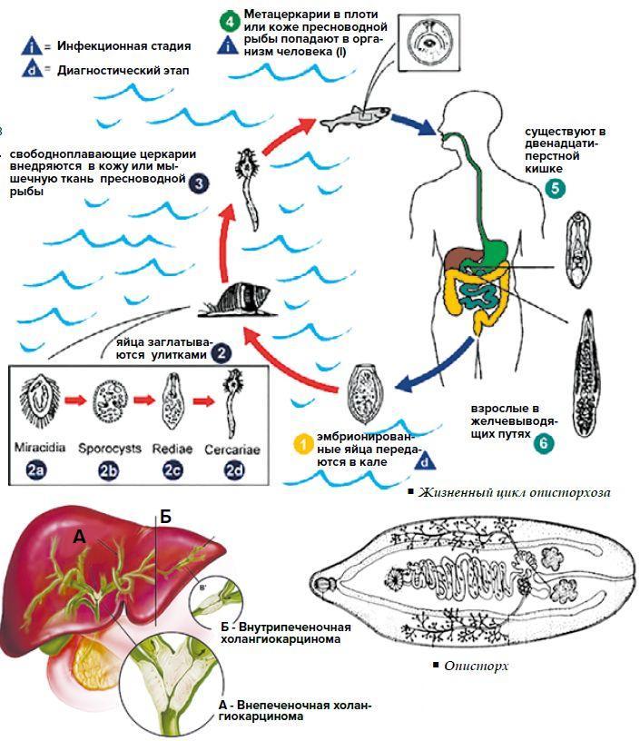 Описторхоз: симптомы и признаки у мужчин, женщин и детей