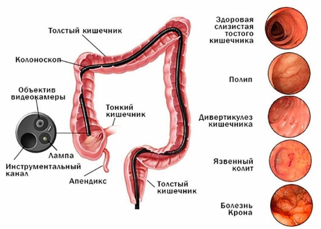 Фиброколоноскопия и колоноскопия , в чём разница —  4 основных отличия