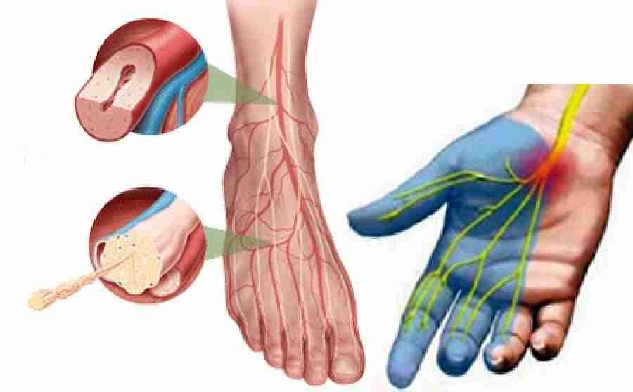 Диабетическая полинейропатия нижних конечностей: что это такое, лечение препаратами, народными средствами