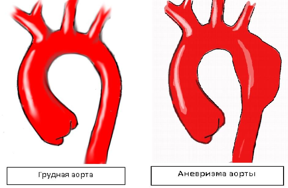 Аневризма аорты сердца что это такое симптомы - здоров.сердцем