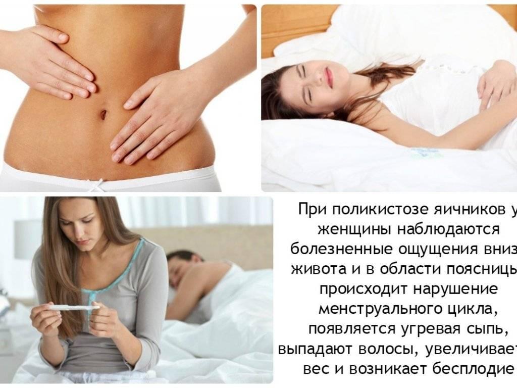 Что такое синдром поликистозных яичников или спкя?