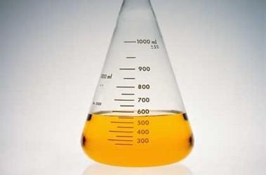 Что такое моча, ее химический состав