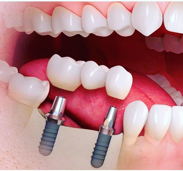 Имплантация зубов: что это такое и как она происходит