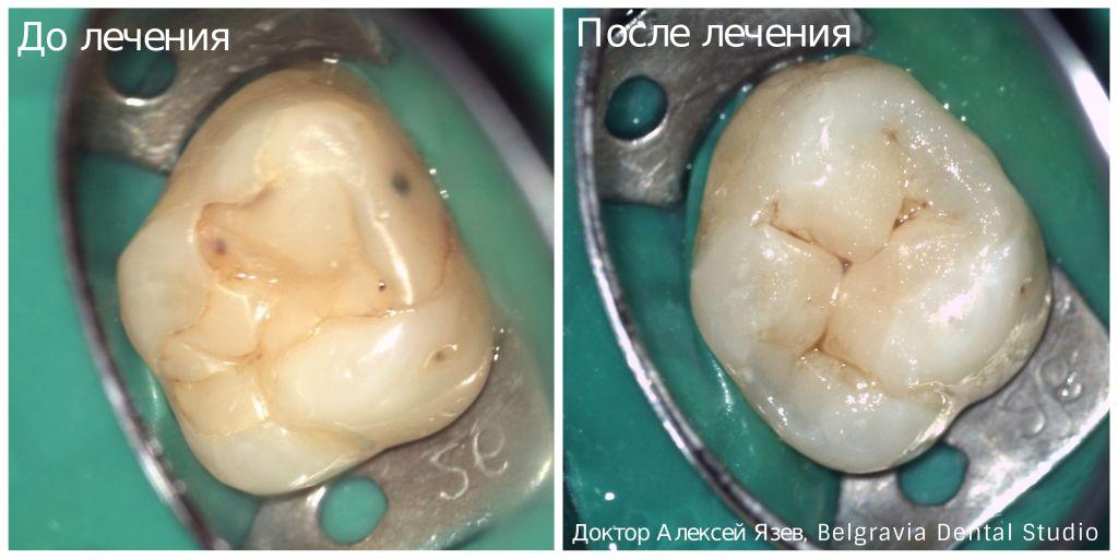 Пломбы для зубов: виды зубных пломб | все о зубах