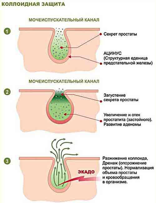 Преждевременная эякуляция (семяиспускание): причины и лечение