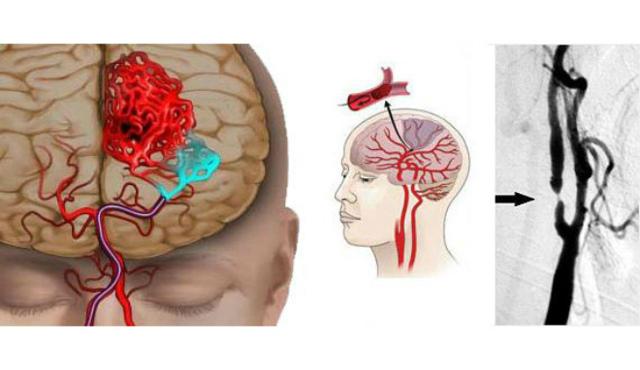 Аневризма головного мозга: симптомы, лечение, операция, разрыв аневризмы, последствия
