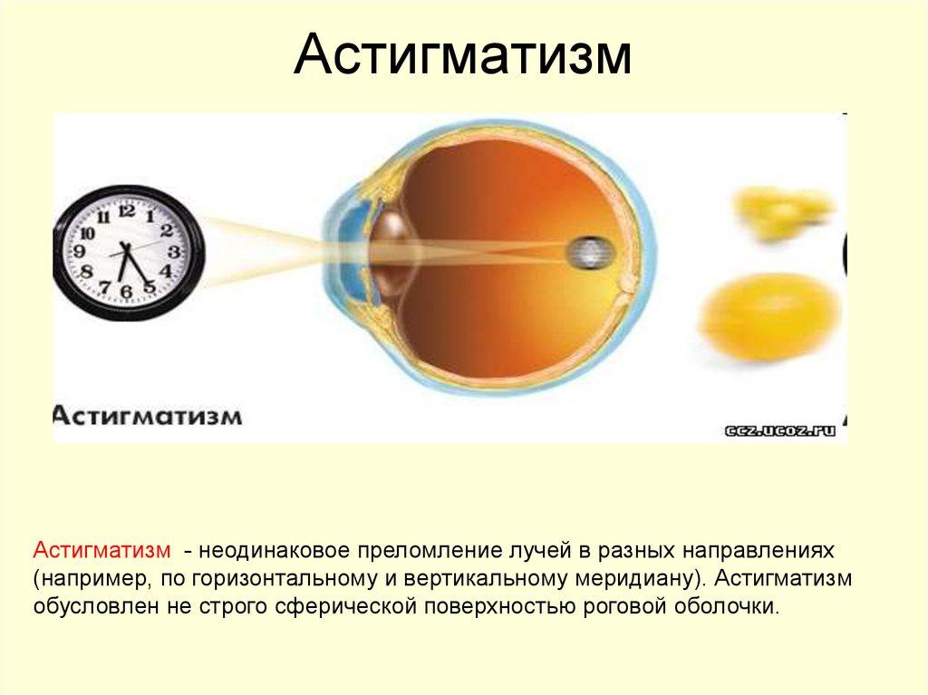 Чем опасен астигматизм глаз: первые признаки и современные методы лечения