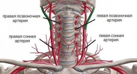 Гипоплазия правой позвоночной артерии: что это такое, описание симптомов, лечение, прогноз