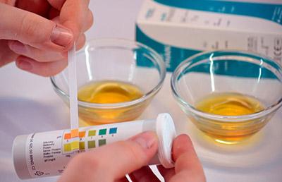 Кетоновые тела в моче - причины повышенного содержания в анализе, норма и лечение