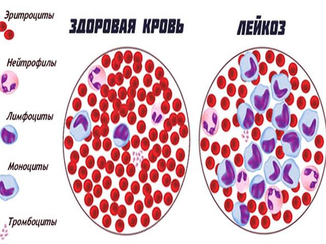 Лейкемия - симптомы, лечение, причины, признаки лейкемии