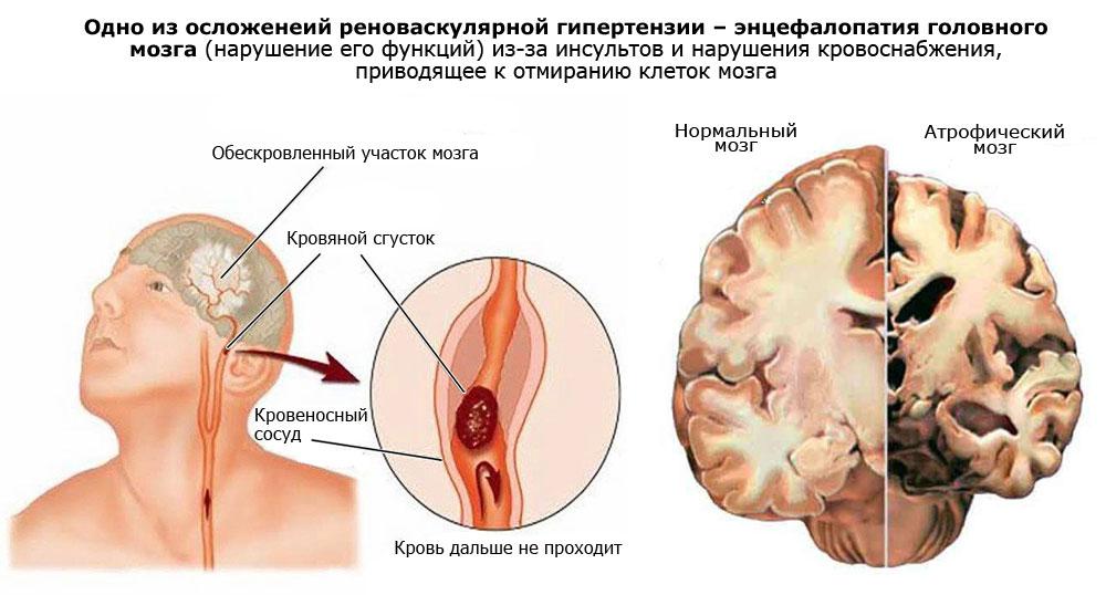 Реноваскулярная гипертензия — что это такое?