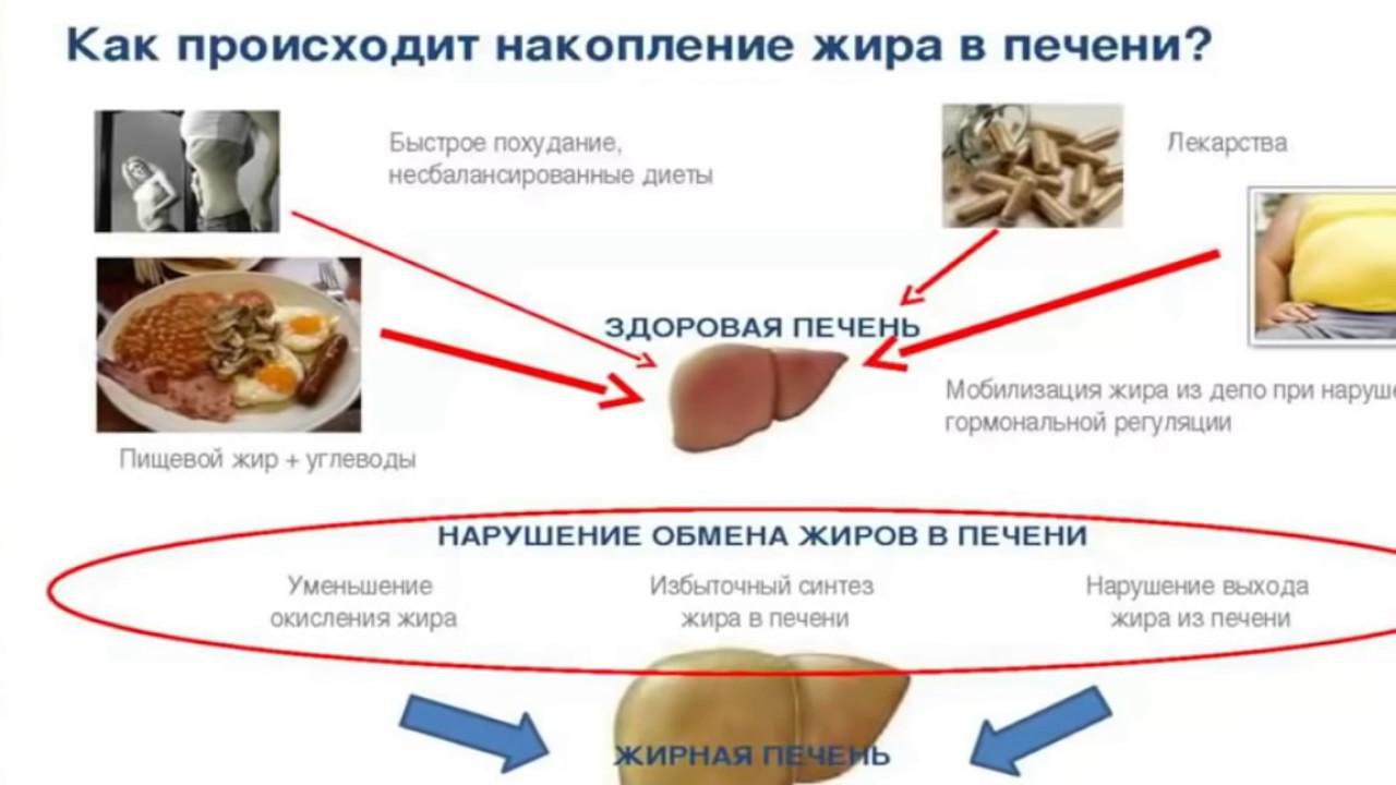 Жировой гепатоз печени: лечение народными средствами в домашних условиях