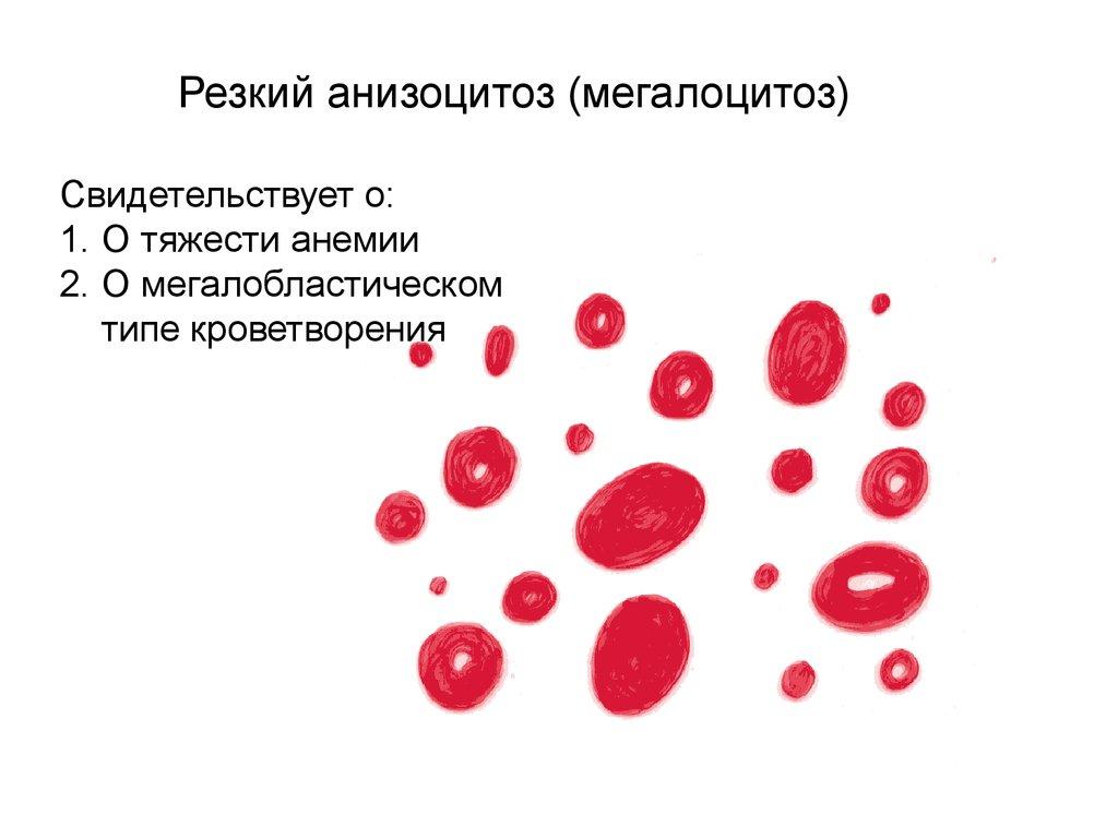 Патологическое изменение кровяных телец — анизоцитоз эритроцитов