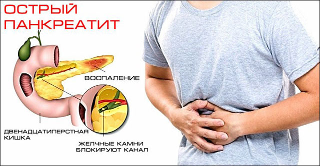 Воспаление поджелудочной железы (панкреатит): что это, как проявляется и чем опасен панкреатит?