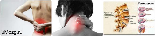 Лечение вертеброгенной люмбалгии | компетентно о здоровье на ilive