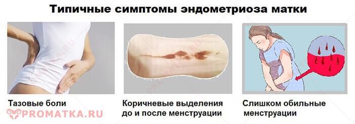 Эндометриоз матки - лечение, признаки, симптомы, степени