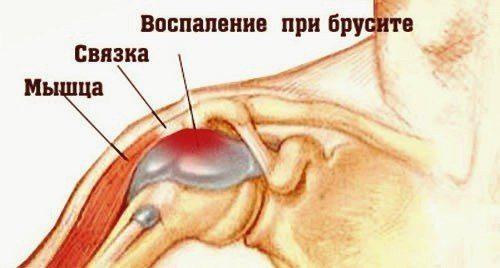 Плечевой бурсит: что за болезнь, как диагностировать и вылечить?