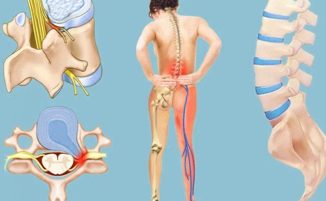 Люмбалгия поясничного отдела: симптомы, лечение
