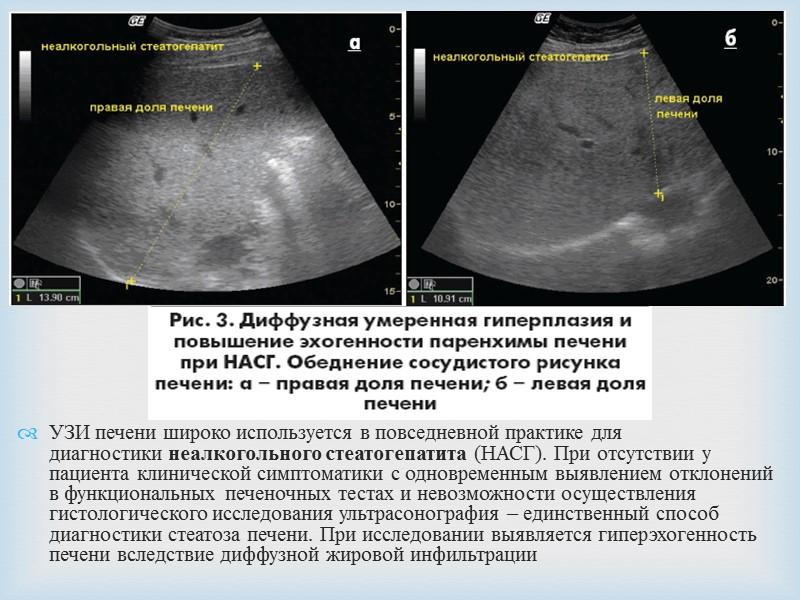Диффузные изменения печени: типы и возможные причины - kardiobit.ru
