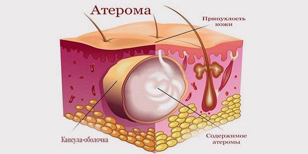 Атерома - симптомы и лечение. журнал медикал