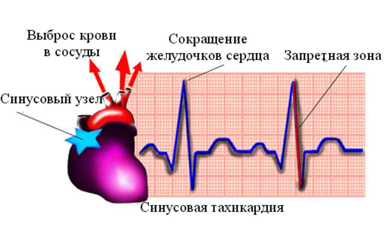 Синусовая тахикардия сердца: что это такое у взрослых и детей, код по мкб-10, причины, симптомы, лечение. нарушение ритма на экг и чем опасны приступы
