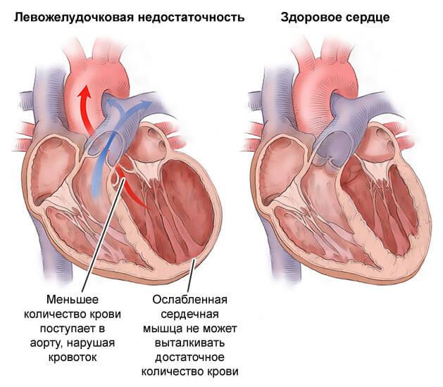 Особенности лечения алкогольной кардиомиопатии