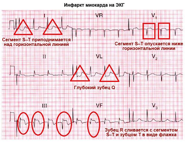 Кому не надо делать экг. о кардиограмме – подробно