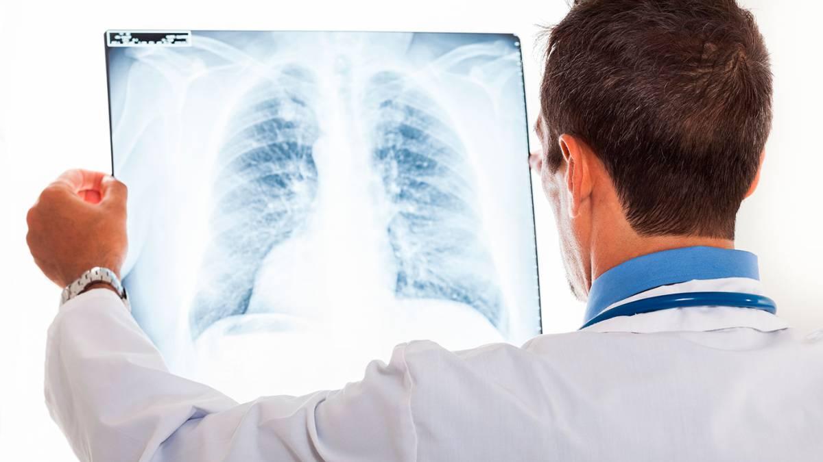 Диффузный пневмосклероз   симптомы и лечение диффузного пневмосклероза   компетентно о здоровье на ilive