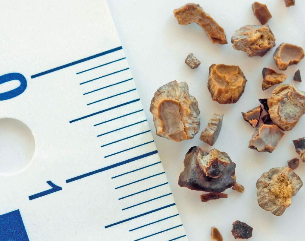 Микролитиаз почек, микролиты - причины, симптоматика, лечение