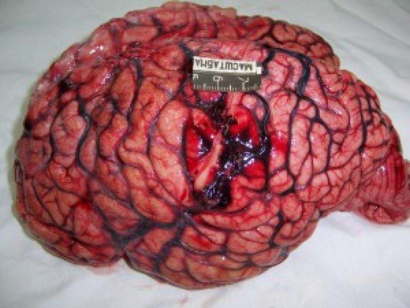 Что такое контузия головного мозга: причины, лечение и последствия - неврология